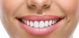 A woman shows her smile after an appointment at westside dental clinic