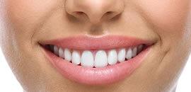 westside dental implants kelowna tooth teeth whitening white teeth dentist dental implants tooth implant implantation dental implant cost permanent teeth implants