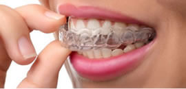 Invisalign clear braces to straighten teeth