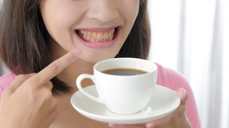 Women with coffee stained teeth