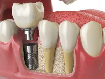 3D rendering of dental implant