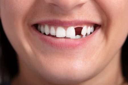 woman smiles with missing tooth