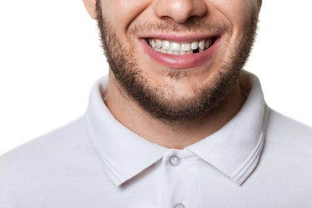 man smiles with missing tooth