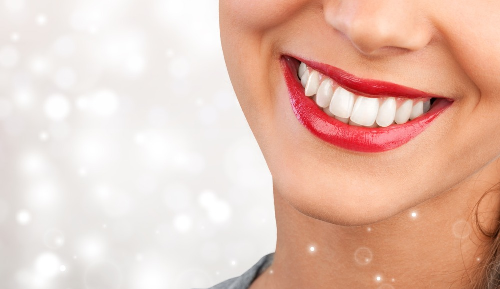 woman smiles after teeth whitening