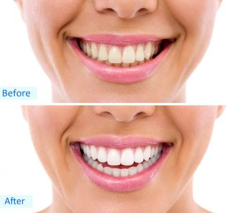 teeth whitening comparison before after