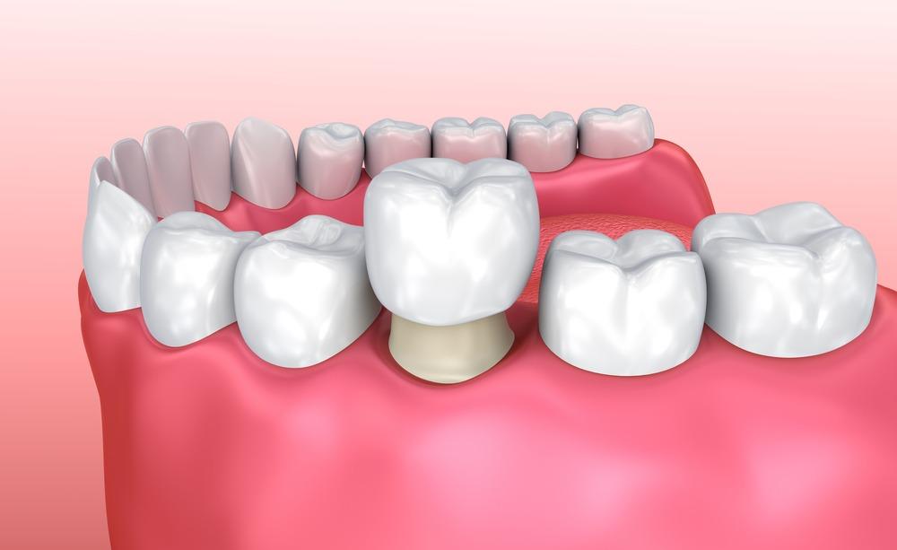 3D illustration of a dental crown
