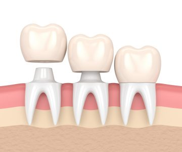 animation of dental crowns